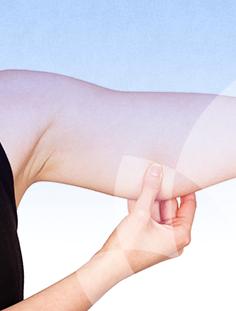 cirurgias-e-procedimentos-corporal-braquioplastia-thumb